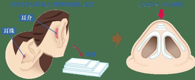 「鼻プロテーゼ+鼻尖縮小(close法)+耳介軟骨移植+小鼻縮小」 新宿ラクル美容外科クリニック 山本厚志