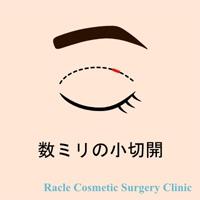 新宿ラクル美容外科クリニック 山本厚志 「エクセレントアイ(埋没法二重術)+目の上の脂肪取り」