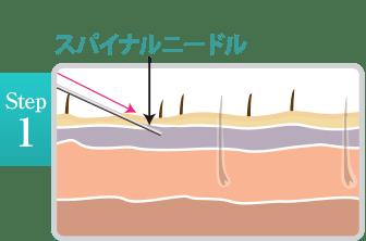 新宿ラクル美容外科クリニック 山本厚志 「ミントリフトⅡminiS flex(シークレットリフト)」 step1