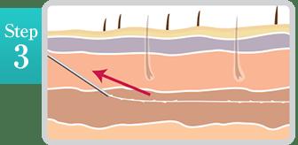 新宿ラクル美容外科クリニック 山本厚志 「ミントリフトⅡminiS flex(シークレットリフト)」 step3