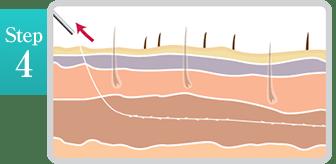 新宿ラクル美容外科クリニック 山本厚志 「ミントリフトⅡminiS flex(シークレットリフト)」 step4