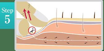 新宿ラクル美容外科クリニック 山本厚志 「ミントリフトⅡminiS flex(シークレットリフト)」 step5