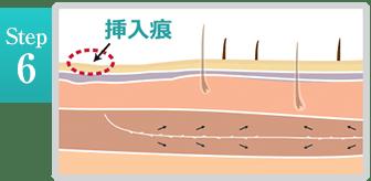 新宿ラクル美容外科クリニック 山本厚志 「ミントリフトⅡminiS flex(シークレットリフト)」 step6