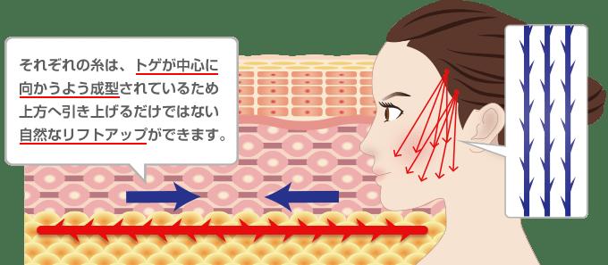新宿ラクル美容外科クリニック 山本厚志 「ミントリフトⅡminiS flex(シークレットリフト)」 糸リフト