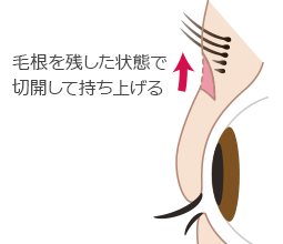 新宿ラクル美容外科クリニック 山本厚志 「眉下切開法」