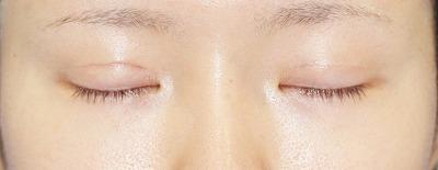 「挙筋腱膜前転法(まぶたを引き上げ目力アップ)」 新宿ラクル美容外科クリニック 山本厚志 20代女性 手術後1ヶ月目