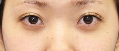 新宿ラクル美容外科クリニック 山本厚志 切らない目の下のたるみ取り 20代女性 手術後1ヶ月目