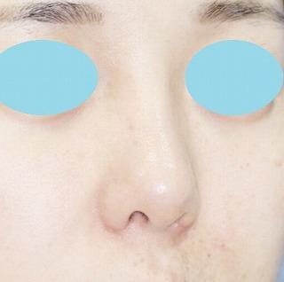 「鼻プロテーゼ+鼻尖縮小(close法)+耳介軟骨移植+小鼻縮小」 新宿ラクル美容外科クリニック 20代女性 手術後2ヶ月目