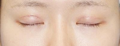 「挙筋腱膜前転法(まぶたを引き上げ目力アップ)」 新宿ラクル美容外科クリニック 山本厚志 20代女性 手術後1週間目