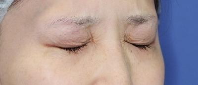 新宿ラクル美容外科クリニック ボトックス(ゼオミン)(目尻+目の下、眉間+鼻根部) 20代女性 治療後2週間目