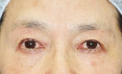新宿ラクル美容外科クリニック 山本厚志 眉下切開法 60歳代女性 手術後6ヶ月目