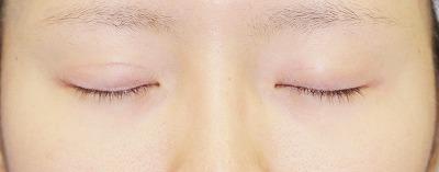 「挙筋腱膜前転法(まぶたを引き上げ目力アップ)」 新宿ラクル美容外科クリニック 山本厚志 20代女性 手術後3ヶ月目