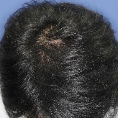 新宿ラクル美容外科クリニック 山本厚志 「DR.CYJ ヘアーフィラー」 4回目の施術後2週間目