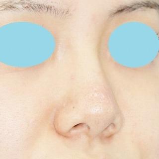 新宿ラクル美容外科クリニック 山本厚志 n-COG Y-ko(ワイコ) 手術前
