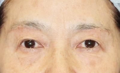 新宿ラクル美容外科クリニック 山本厚志 眉下切開法 60歳代女性 手術後1ヶ月目