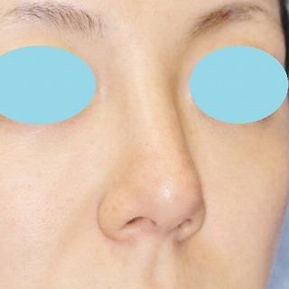 新宿ラクル美容外科クリニック 山本厚志 「n-COG Y-ko(ワイコ)」手術後1ヶ月目