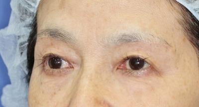 新宿ラクル美容外科クリニック 山本厚志 眉下切開法 60歳代女性 手術後3ヶ月目