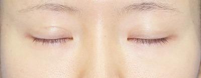 「挙筋腱膜前転法(まぶたを引き上げ目力アップ)」 新宿ラクル美容外科クリニック 山本厚志 20代女性 手術後6ヶ月目