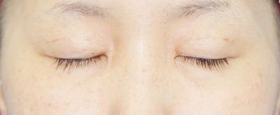 新宿ラクル美容外科クリニック 山本厚志 「埋没法二重術(エクセレントアイ)+目の上の脂肪取り(マイクロカット法)」 手術後1ヶ月目
