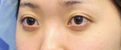 新宿ラクル美容外科クリニック 山本厚志 切らない目の下のたるみ取り 20代女性 手術後6ヶ月目