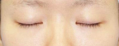 「挙筋腱膜前転法(まぶたを引き上げ目力アップ)」 新宿ラクル美容外科クリニック 山本厚志 20代女性 手術前