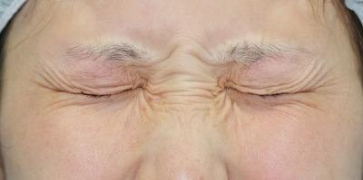 新宿ラクル美容外科クリニック ボトックス(ゼオミン)(目尻+目の下、眉間+鼻根部) 20代女性 治療前
