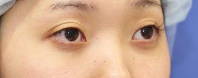 新宿ラクル美容外科クリニック 山本厚志 切らない目の下のたるみ取り 20代女性 手術後2ヶ月目