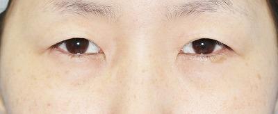 新宿ラクル美容外科クリニック 山本厚志 「埋没法二重術(エクセレントアイ)+目の上の脂肪取り(マイクロカット法)」 手術前