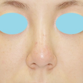 新宿ラクル美容外科クリニック 山本厚志 「n-COG Y-ko(ワイコ)」手術後2ヶ月目