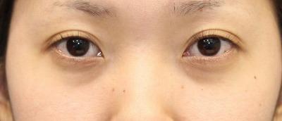 新宿ラクル美容外科クリニック 山本厚志 切らない目の下のたるみ取り 20代女性 手術前