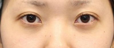 新宿ラクル美容外科クリニック 山本厚志 切らない目の下のたるみ取り 20代女性 手術直後