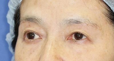 新宿ラクル美容外科クリニック 山本厚志 眉下切開法 60歳代女性 手術後2ヶ月目