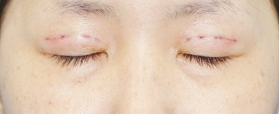 新宿ラクル美容外科クリニック 山本厚志 「埋没法二重術(エクセレントアイ)+目の上の脂肪取り(マイクロカット法)」 手術直後