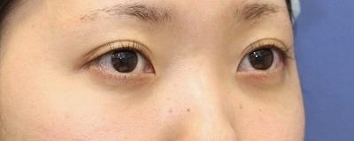 新宿ラクル美容外科クリニック 山本厚志 切らない目の下のたるみ取り 20代女性 手術後1週間目