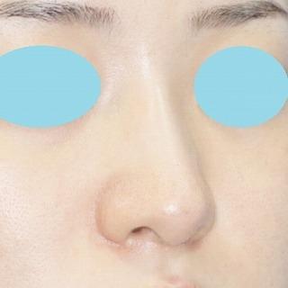 新宿ラクル美容外科クリニック 山本厚志 n-COG Y-ko(ワイコ) 手術後1週間目