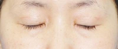 新宿ラクル美容外科クリニック 山本厚志 「埋没法二重術(エクセレントアイ)+目の上の脂肪取り(マイクロカット法)」 手術後3ヶ月目