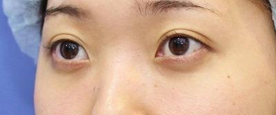 新宿ラクル美容外科クリニック 山本厚志 切らない目の下のたるみ取り 20代女性 手術後3ヶ月目