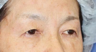 新宿ラクル美容外科クリニック 山本厚志 眉下切開法 60歳代女性 手術前