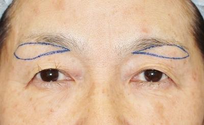 新宿ラクル美容外科クリニック 山本厚志 眉下切開法 60歳代女性 手術前デザイン