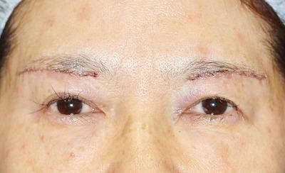 新宿ラクル美容外科クリニック 山本厚志 眉下切開法 60歳代女性 手術直後