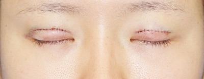「挙筋腱膜前転法(まぶたを引き上げ目力アップ)」 新宿ラクル美容外科クリニック 山本厚志 20代女性 手術直後