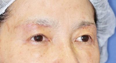 新宿ラクル美容外科クリニック 山本厚志 眉下切開法 60歳代女性 手術後1週間目