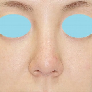 新宿ラクル美容外科クリニック 山本厚志 「n-COG Y-ko(ワイコ)」手術後3ヶ月目