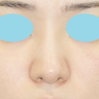 新宿ラクル美容外科クリニック 山本厚志 n-COG Y-ko(ワイコ) 手術後1M目