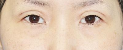 新宿ラクル美容外科クリニック 山本厚志 「埋没法二重術(エクセレントアイ)+目の上の脂肪取り(マイクロカット法)」 手術後1週間目