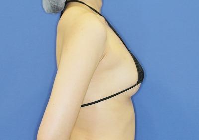 新宿ラクル美容外科クリニック 山本厚志 「アクアフィリング(AQUA filling)注入豊胸」 手術後6ヶ月目