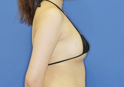 新宿ラクル美容外科クリニック 山本厚志 「アクアフィリング(AQUA filling)注入豊胸」 手術後3ヶ月目