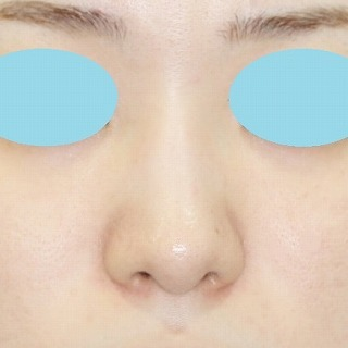 新宿ラクル美容外科クリニック 山本厚志 n-COG Y-ko(ワイコ) 手術後2ヶ月目