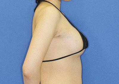 新宿ラクル美容外科クリニック 山本厚志 「アクアフィリング(AQUA filling)注入豊胸」 手術直後