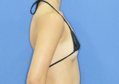 新宿ラクル美容外科クリニック 山本厚志 「Motiva(モティバ)エルゴノミクス」豊胸術 手術前